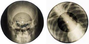 Советская эра: музыкальные диски на рентгеновских снимках