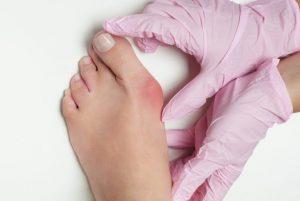 Лечение вальгусной косточки на ногах народными средствами