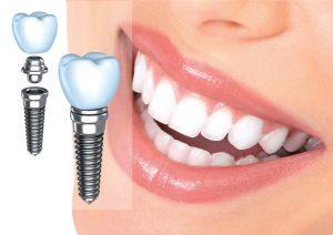 Противопоказания к зубным имплантантам — описание от стоматологии в Воронеже